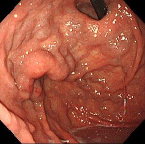 胃静脈瘤1 いしい内科・糖尿病クリニック