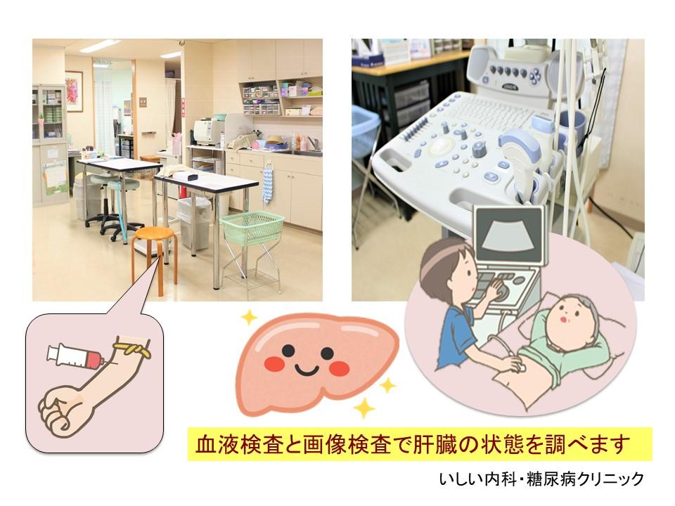 血液検査と腹部超音波検査 いしい内科・糖尿病クリニック